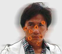 Список всех травм Джеки Чана, многие из которых могли стоить ему жизни